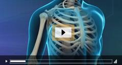 Patient Education Videos